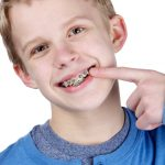 Protect my braces with Denta-Gard